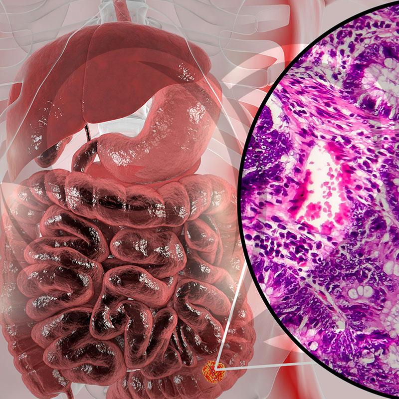 Gastrointestinal Tumors