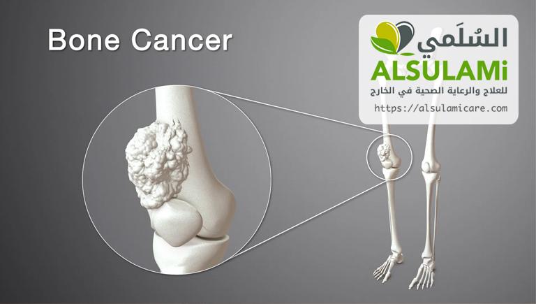 سرطان العظام
