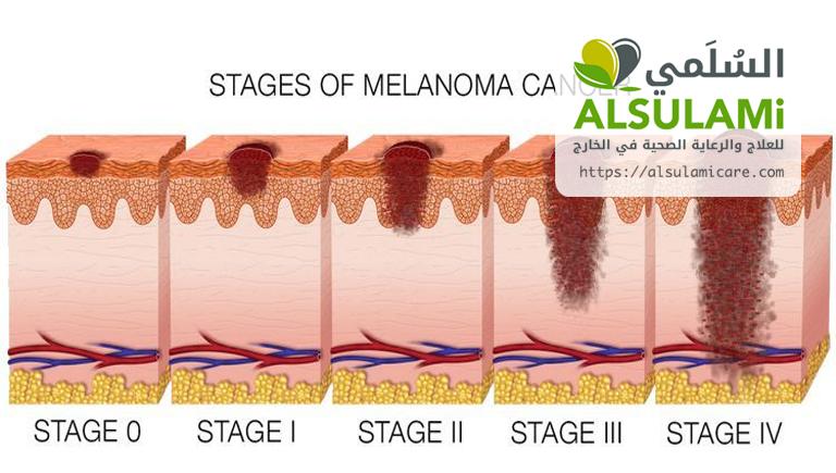 الورم الميلانيني
