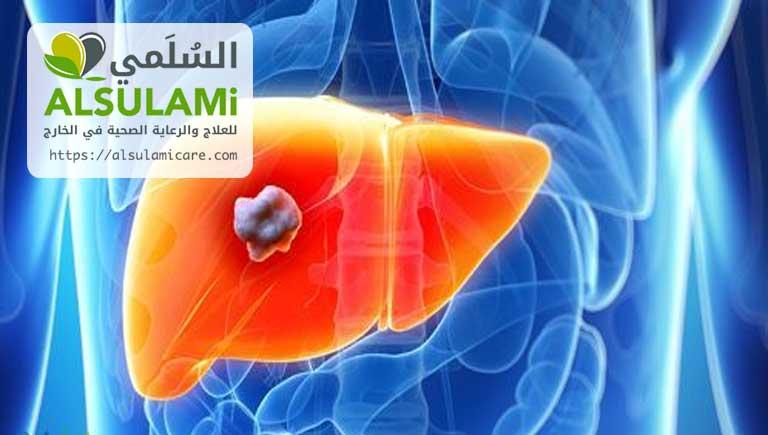 علاج تليف الكبد بالخارج